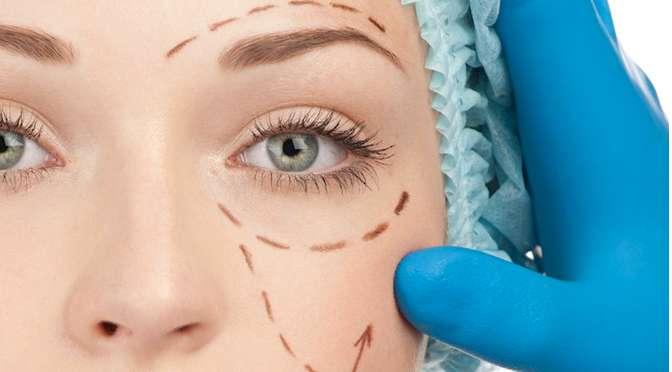 Occhi in primo piano con la blefaroplastica a mezzo laser